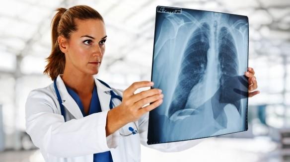 Felhívás tüdőszűrésre